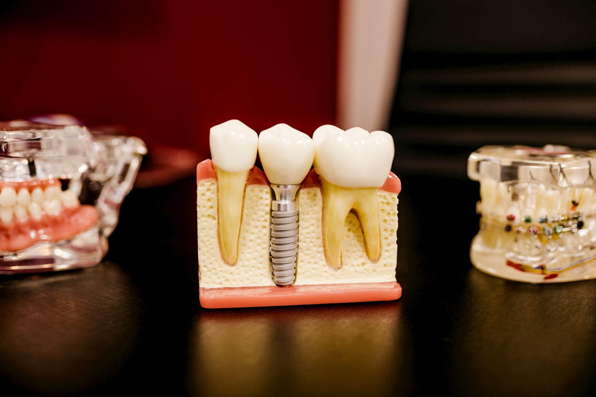 Co to jest implant zęba?