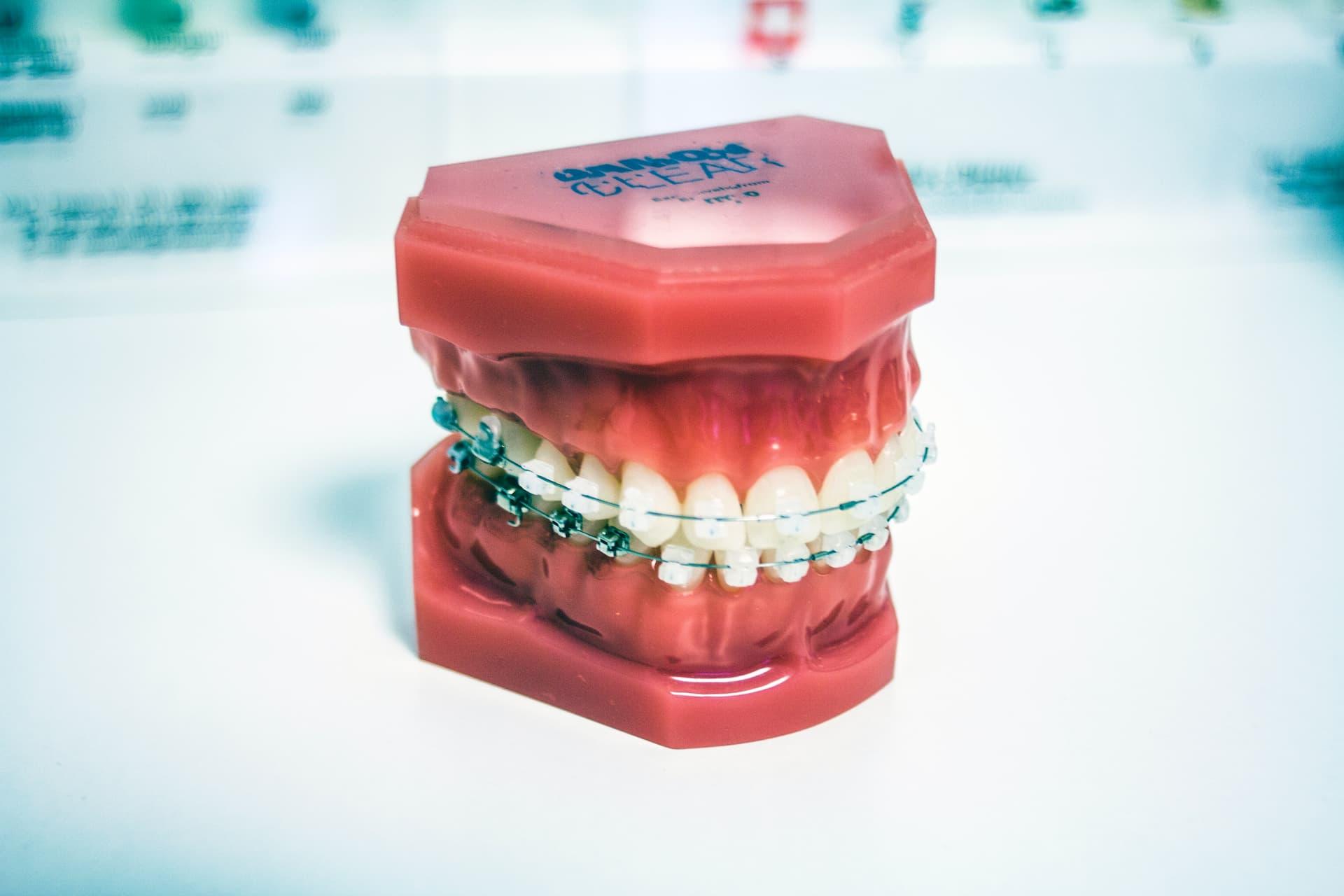 Co musisz wiedzieć przed pierwszą wizytą u ortodonty